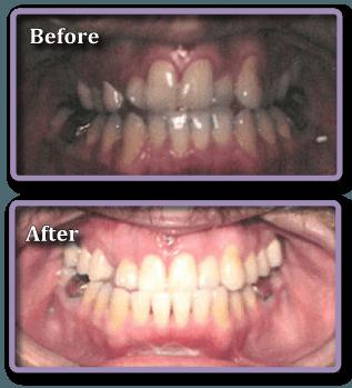 braces-set4-crp